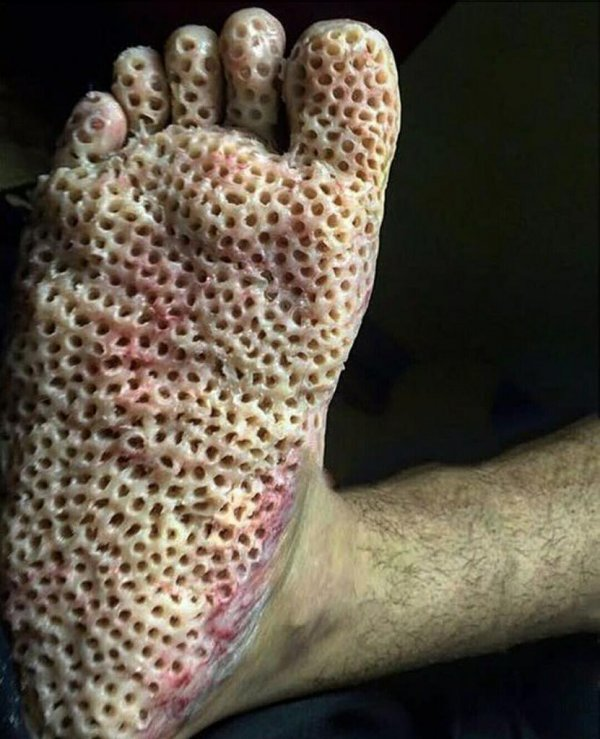 What is Trypophobia?- A Fear of Holes! Symptoms, Causes And Treatment